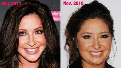 Bristol-Palin-Plastic-Surgery-photos
